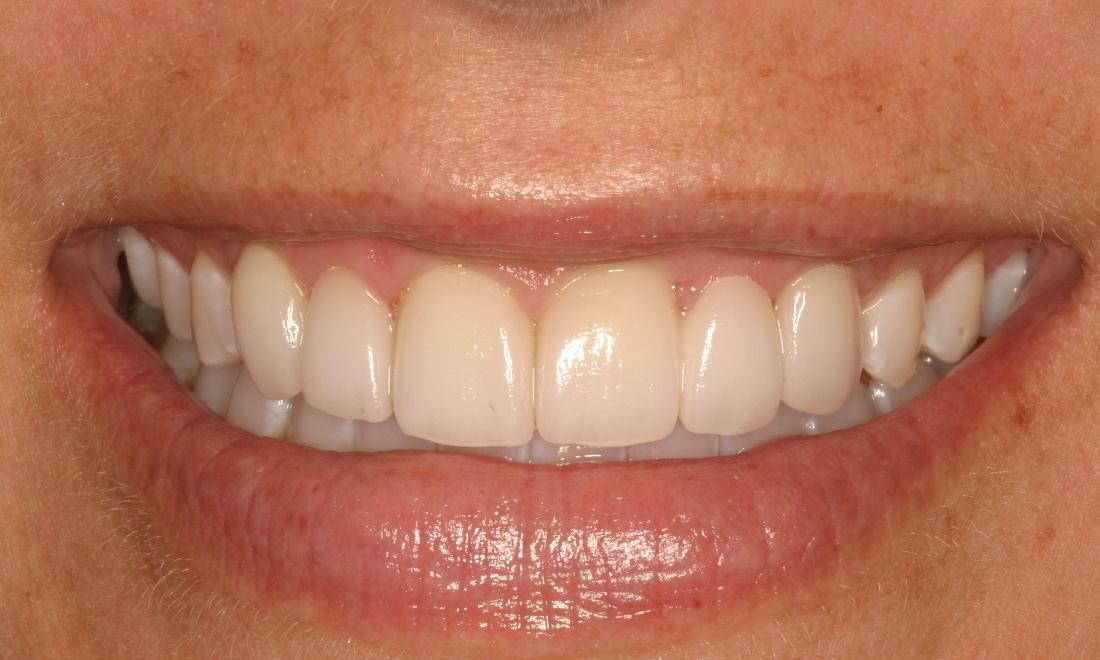 Periodontal Treatment Gives Patient A Whole New Smile