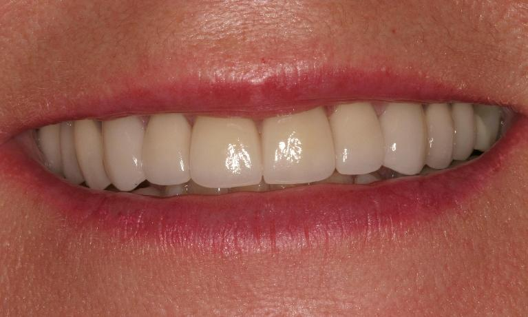 Veneers-and-Crowns-After-Image