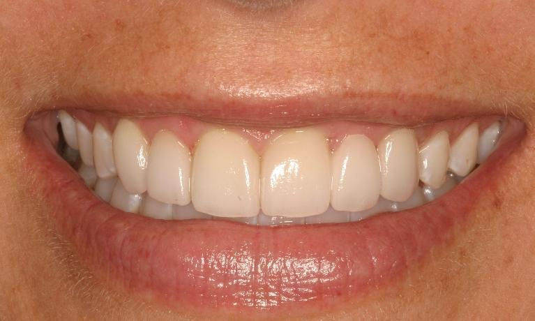 Periodontal-Treatment-Gives-Patient-A-Whole-New-Smile-After-Image