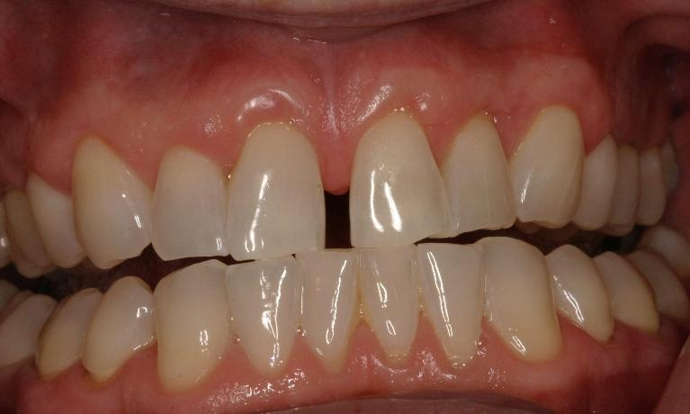 Invisalign-and-Crowns-Before-Image