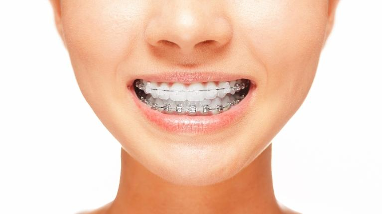 Woman Wearing Braces | The Dental Care Center