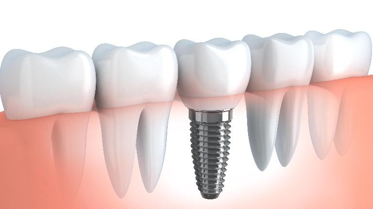 Dental Implant Aftercare | Van Nuys, CA