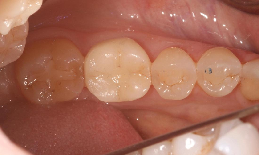 Dental crown on dental implant after tooth extraction in Van Nuys CA