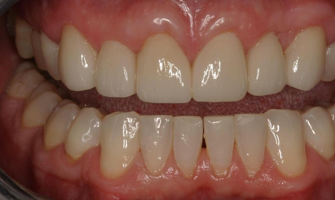 Close up of results from Invisalign clear aligners in Van Nuys CA