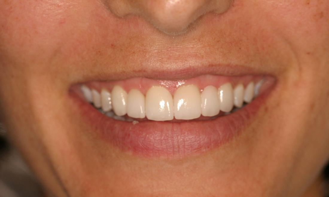 Results from procedure for dental crowns in Van Nuys, CA