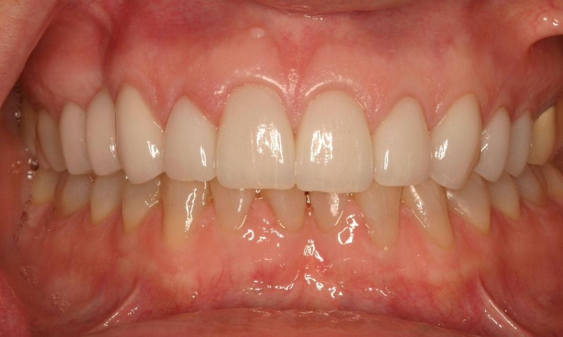 Close up from results of dental crowns procedure in Van Nuys, CA