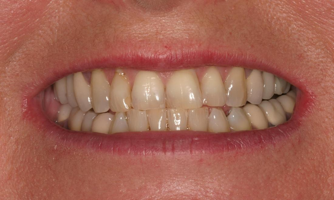 Dental Veneers and Crowns | The Dental Care Center