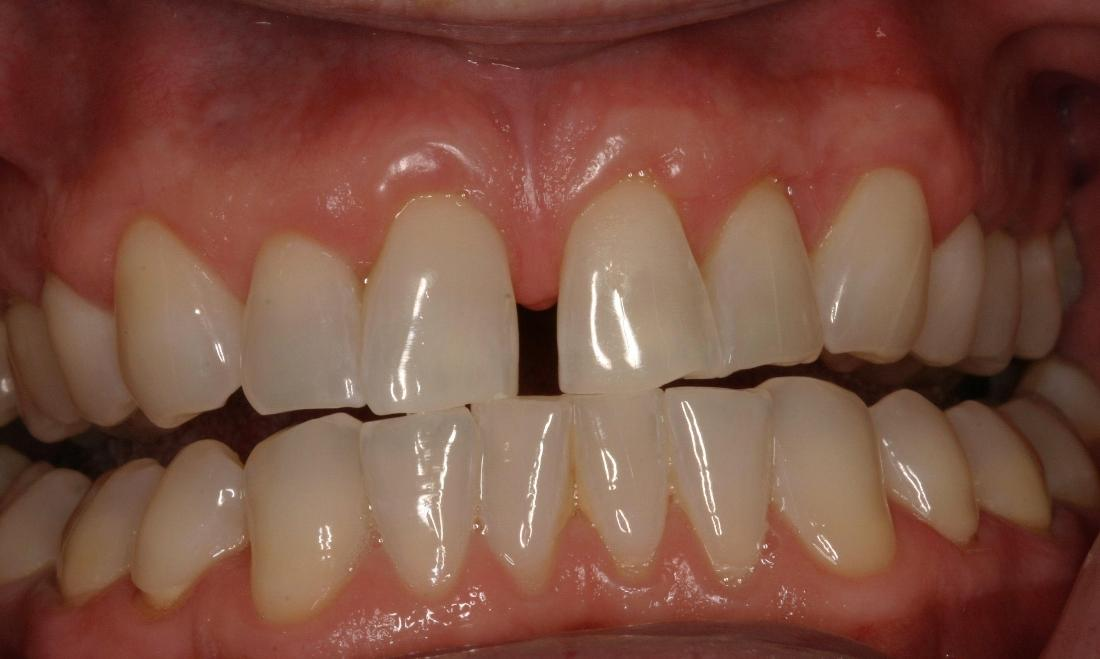 Patient with gap in front teeth at dentist office in Van Nuys