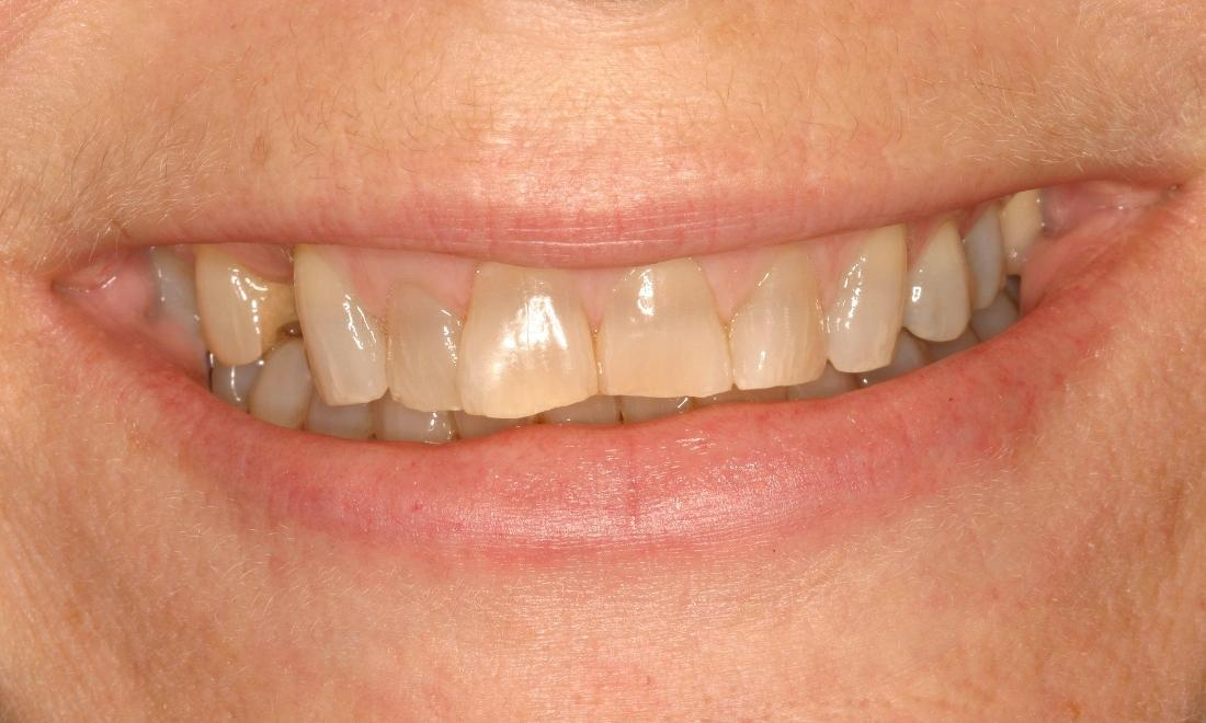Patient with yellow & worn down teeth | Dental Crowns Van Nuys