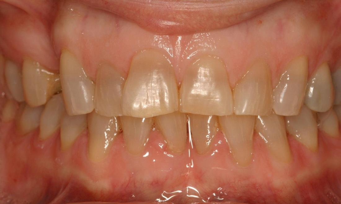 Before image of discolored and worn down teeth | 91405 Dentist Office