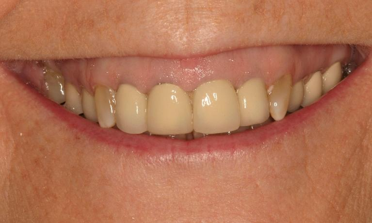 Periodontal-Treatment-Gives-Patient-A-Whole-New-Smile-Before-Image